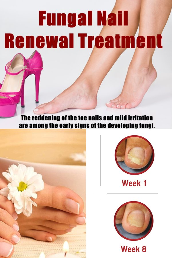 Nail Fungus, Also Called Onychomycosis Or Tinea Unguium Scientifically, Are Those Irritating Tiny Organisms That Lives Under Our Toe And Fingernails.