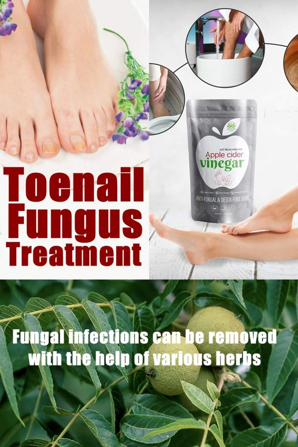 Natural Hearling Herbs – Toenail Fungus Treatment With The Help Of Natural Herb